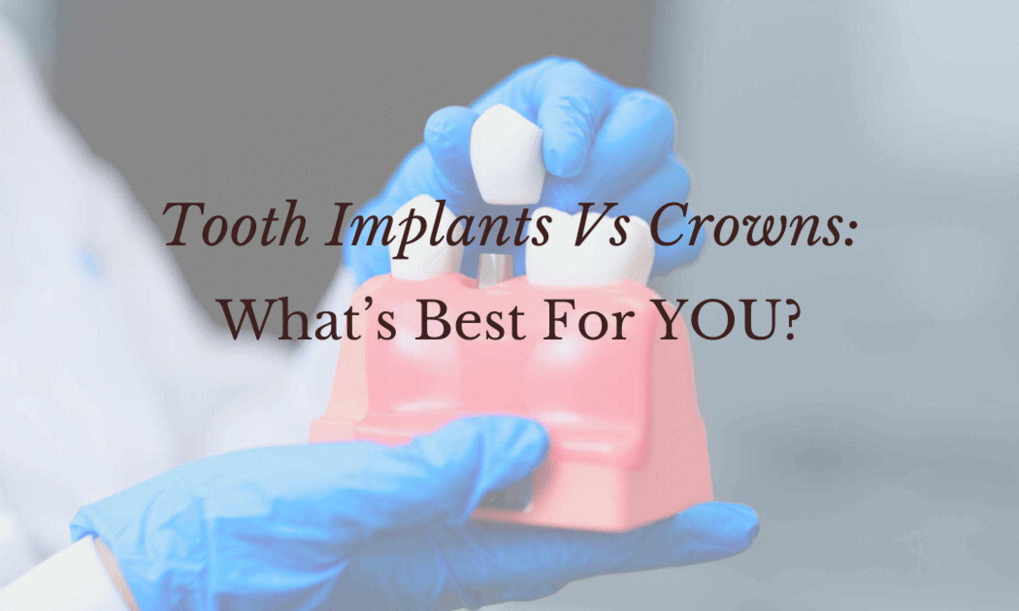 Tooth Implants Vs Crowns_ What's Best For YOU