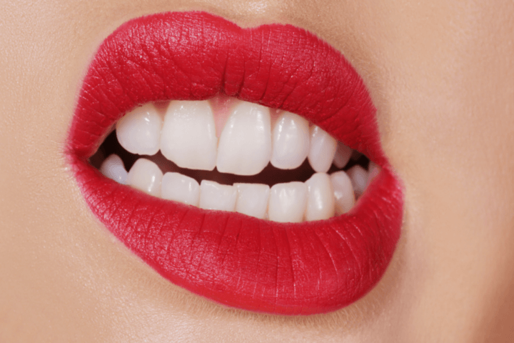 7 Habits That Cause Bad Teeth